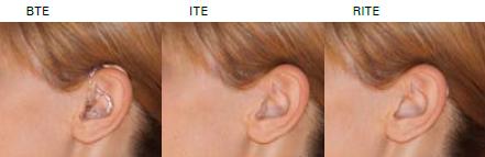 Zrozum Aparaty Słuchowe
